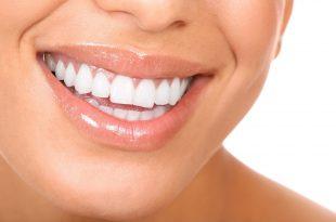 صورة خلطات تبيض الاسنان , اجمل وصفات تبييض وتنظيف الاسنان
