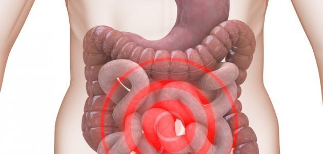 صورة اعراض القولون العصبي , اهم نتائج المشكلات والاحزان على الصحة