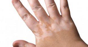 صوره علاج البهاق , علاج امراض الجلد