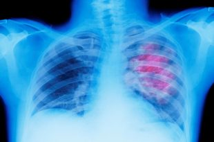 صورة اعراض سرطان الرئة , كيفية فخص مريض سرطان الرئة