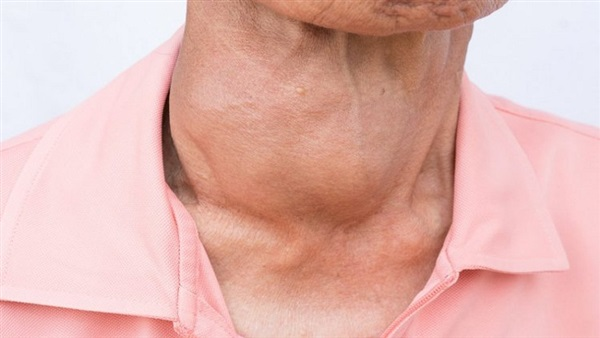 صورة اعراض الغدة الدرقية , معلومات اصابة الغدةالدرقية