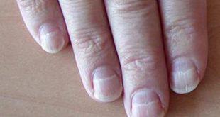 صورة امراض الاظافر , معلومات عن الاظافر