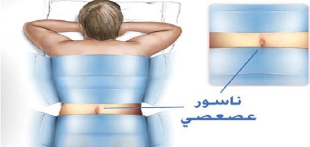 صور علاج الناسور , كيفيه الشفاء التام من مرض الناسور