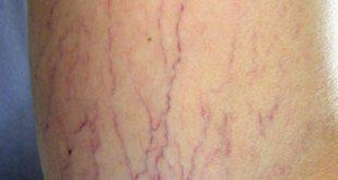 صورة مرض الدوالي , اهم المعلومات عن مرض الدوالي 3011 3 310x165