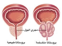 بالصور مرض البروستات , معلومات عامه عن مرض البروستات 3041 2