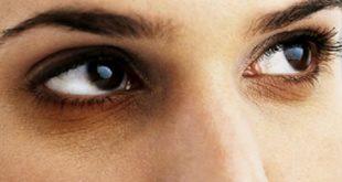 الهالات السوداء تحت العين , اسباب الهالات السوداء وعلاجها