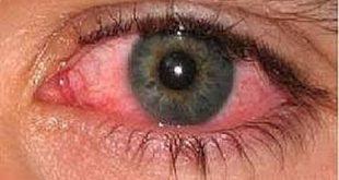 علاج حساسية العين , طرق علاج حساسيه العين