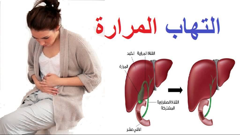 صورة اعراض المرارة , ما هي اعراض المراره وعلاجها