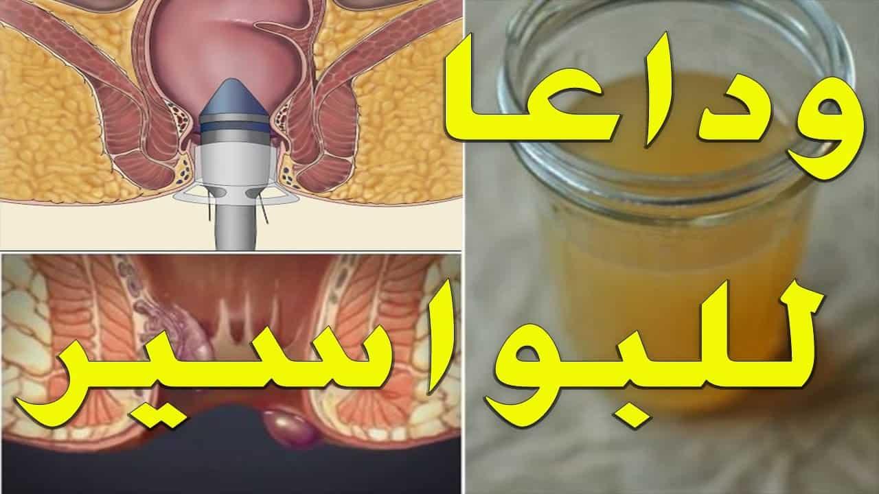 صوره علاج البواسير , اعراض و علاج البواسير