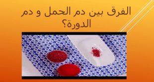 صور الفرق بين دم الدورة ودم الحمل , اختلاف اعراض الحمل والدورة