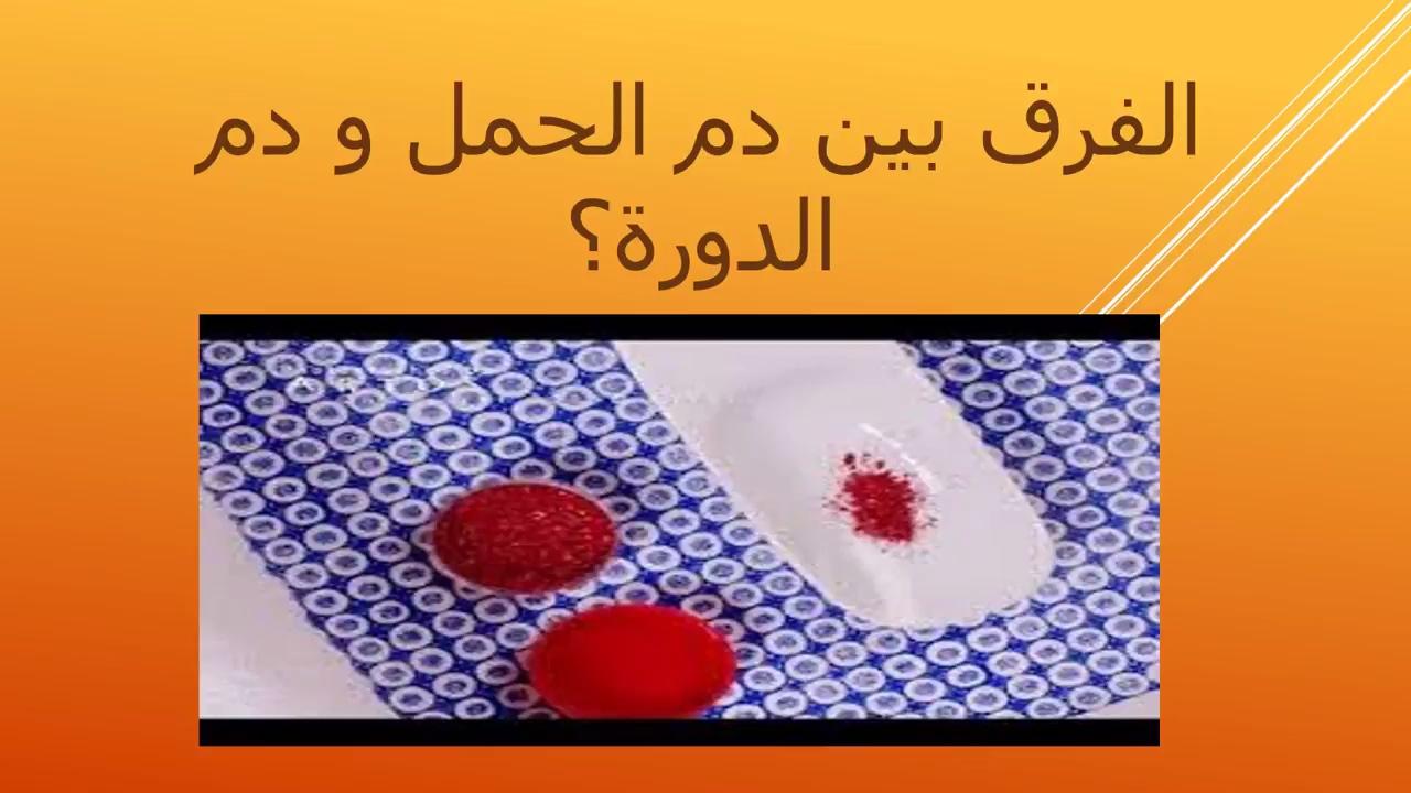 صورة الفرق بين دم الدورة ودم الحمل , اختلاف اعراض الحمل والدورة