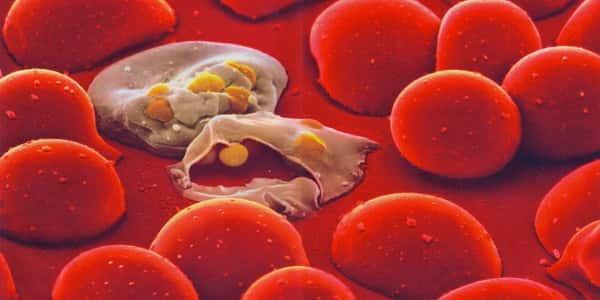 صورة مرض الملاريا , ما هى اعراض مرض الملاريا واضراره