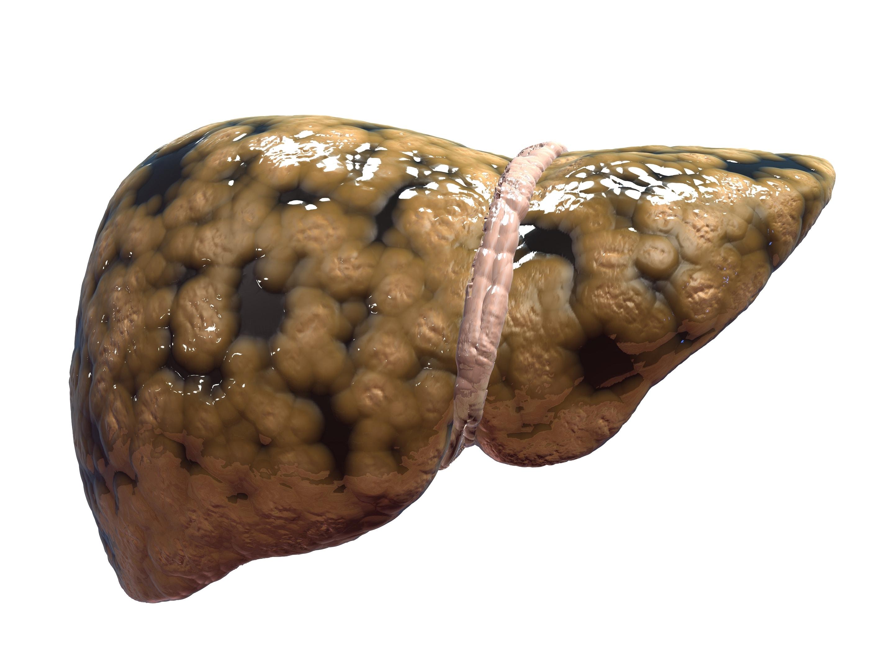 بالصور علاج تليف الكبد , فيرس سي وعلاجه 3708