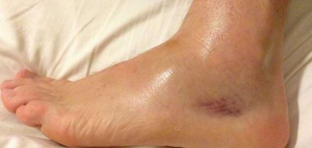 صور علاج انتفاخ القدمين , تورم القدمين وطريقة علاجه
