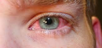 بالصور علاج تعب العين , ابسط الطرق لعلاج العين علاج ارهاقها 12179 2