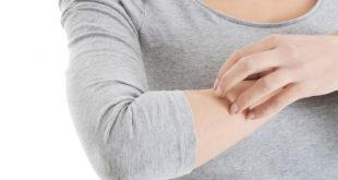 بالصور علاج الحساسية الجلدية والحكة , طرق علاج الحساسيه الجلديه والحكه بالاعشاب 12205 2 310x165