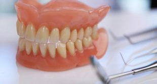 صورة طقم اسنان , طقم الاسنان الجزئي المتحرك