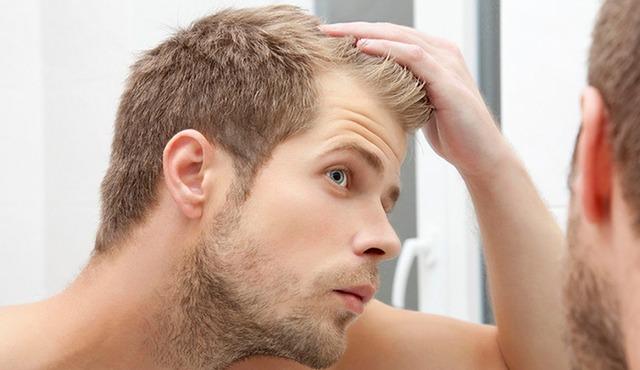 بالصور علاج تساقط الشعر للرجال , تعرف علي طرق علاج تساقط شعر الرجال 641 1