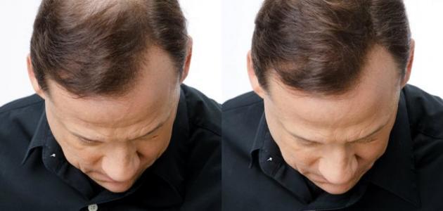 بالصور علاج تساقط الشعر للرجال , تعرف علي طرق علاج تساقط شعر الرجال 641 2