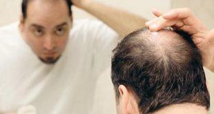 بالصور علاج تساقط الشعر للرجال , تعرف علي طرق علاج تساقط شعر الرجال 641 3 310x165