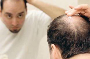 صورة علاج تساقط الشعر للرجال , تعرف علي طرق علاج تساقط شعر الرجال