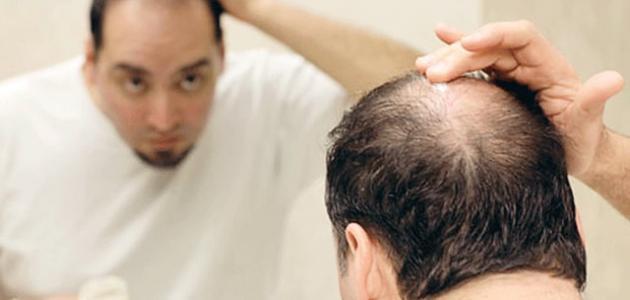 بالصور علاج تساقط الشعر للرجال , تعرف علي طرق علاج تساقط شعر الرجال 641