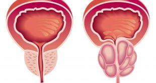 صور علاج البروستاتا , اعراض مرض البروستاتا