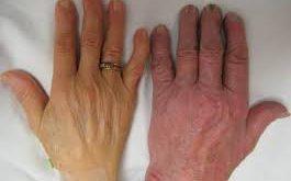 صورة مرض فقر الدم , تعرف علي المزيد من التفاصيل عن مرض فقر الدم