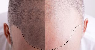 علاج صلع مقدمة الراس عند الرجال , افضل واحسن الطرق لانبات شعر الراس عند الرجال