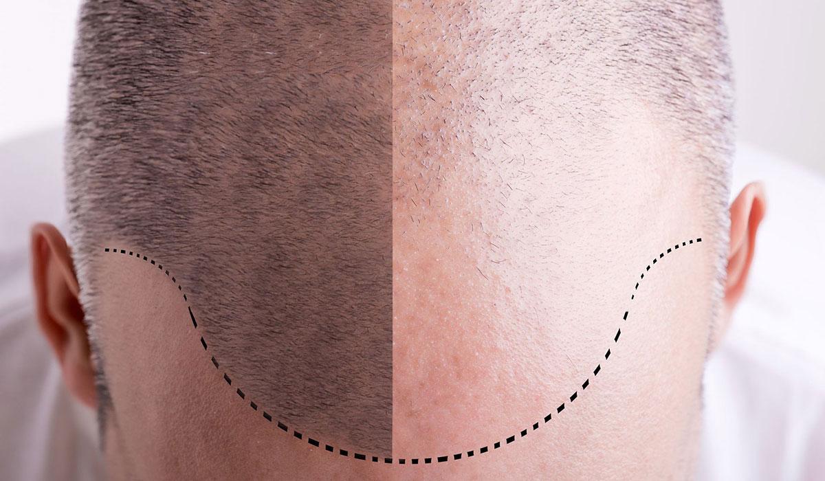 صورة علاج صلع مقدمة الراس عند الرجال , افضل واحسن الطرق لانبات شعر الراس عند الرجال