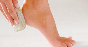 صورة كيفية علاج تشقق القدمين , طرق وعلاج تشقق القدمين