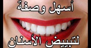 وصفة لتبييض الاسنان , خلطات لتبييض الاسنان في المنزل