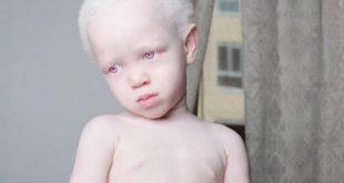 صورة اعراض مرض البرص , ما هو مرض البرص