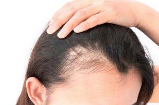 صورة علاجات فراغات الشعر , طرق طبية لعلاج فراغات الراس