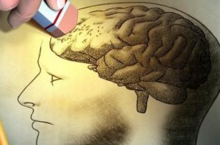 صورة اسباب ضعف الذاكرة , شيوع فقدان الذاكرة عند الشباب