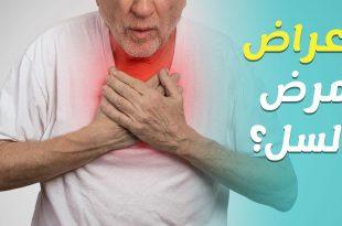 صورة اعراض مرض السل المعوي , حقائق عن مرض السل