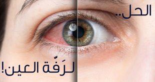 ما سبب رفة العين , اسباب حدوث رفة العين