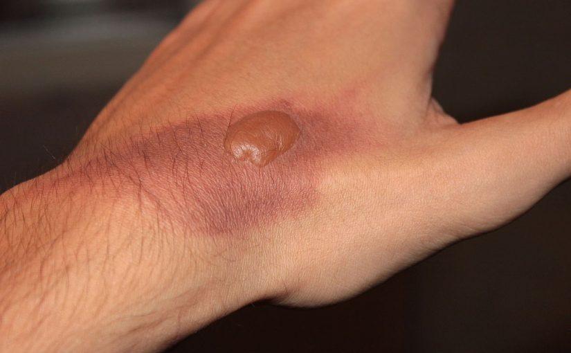 صورة علاج فقاقيع الحروق , طرق مختلفة لعلاج فقاقيع الحروق
