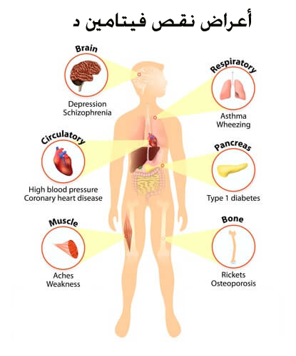 صورة اسباب نقص فيتامين د , اعراض نقص فيتامين د