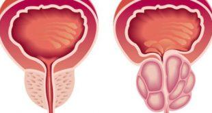 صورة اعراض البروستاتا , علامات التهاب البروستاتا