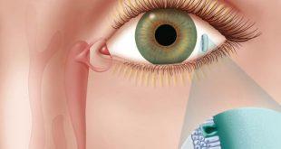 صورة جفاف العين واسباب حدوثه , مشاكل جفاف العين