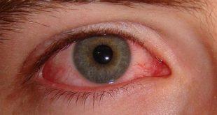 صورة سبب ضغط العين , ارتفاع ضغط العين واسبابه