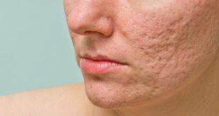 صورة معالجة حبوب الوجه , طريقة لعلاج الوجه من الحبوب