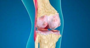 صورة علاج قطع غضروف الركبة , تمزق غضروف الركبة