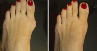 صورة ظهور عظمة القدم , مشكلة اعوجاج عظمة القدم