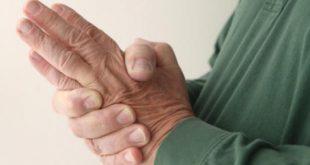 صورة ما سبب خدر اليدين , اسباب تنميل الاطراف