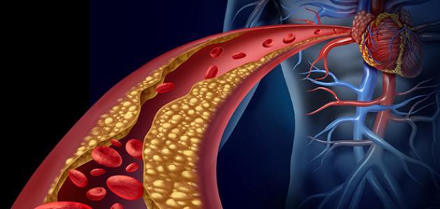 صورة ما علاج الكوليسترول , علاج كوليسترول مجرب