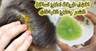 كيفية علاج تساقط الشعر