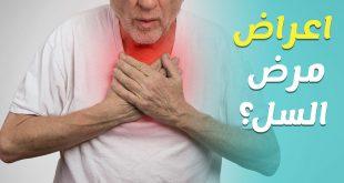 هل مرض السل الرئوي معدي