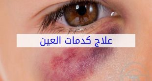 علاج الكدمات تحت العين